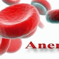 anemia_perniciosa